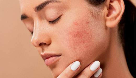 花粉が肌荒れの原因に?インナーケアと敏感肌向けコスメを解説
